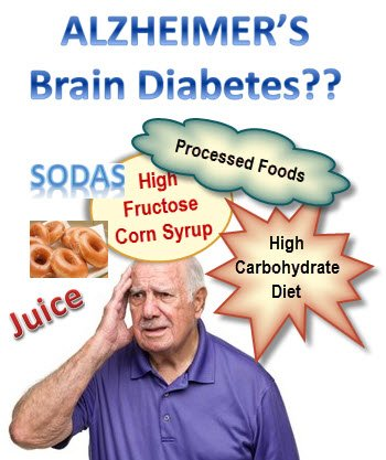 type 3 diabetes-Alzheimers_Brain_Diabetes
